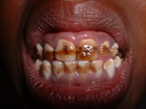 /srv/www/vhosts/user3101/html/entrepreneurship-campus.org/wp-content/uploads/2017/07/300px-Dentalfluorosis-1.jpg